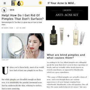 blind pimples, anti-acne, blackheads, whiteheads, papules, cysts
